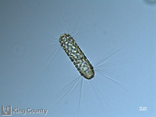 Photo of <em>Corethron hystrix</em> by Gabriela Hannach, King County Environmental Lab