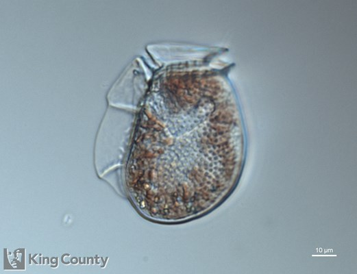 Photo of <em>Dinophysis fortii</em> by Gabriela Hannach, King County Environmental Lab