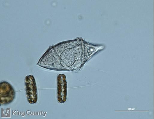 Photo of a transparent <em>Gyrodinium sp.</em>