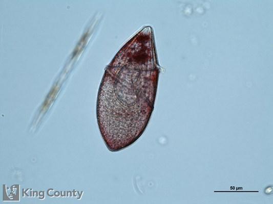 Photo of pigmented <em>Gydroninum sp.</em>