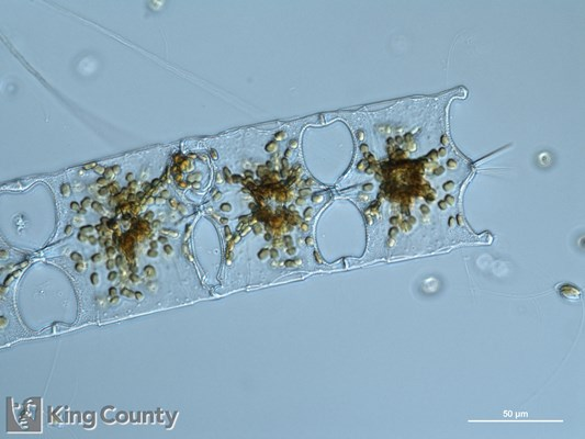Photo of <em>Odontella longicruris</em> by Gabriela Hannach, King County Environmental Lab