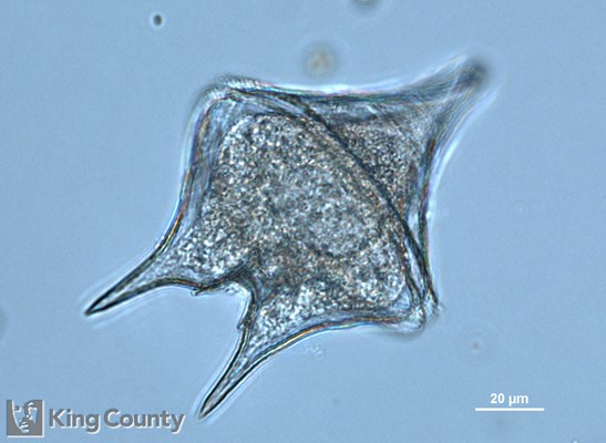 Photo of Protoperidinium oblongum/Protoperidinium oceanicum